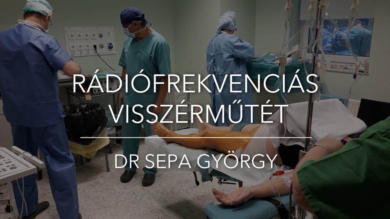 Ragasztásos visszérműtét - Dr. Sepa György érsebész