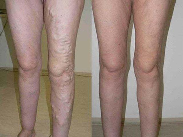 2 durva ok, amiért fájhat a lábad   Well&fit