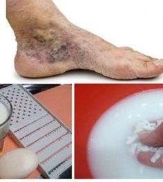 Retikücinemavp.hu - Ezt tedd, ha visszerek csúfítják el a lábad: hatékony házi praktikák