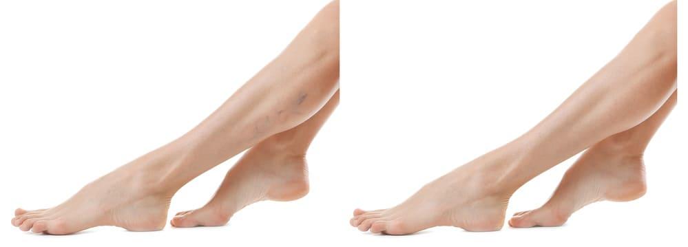 visszérrel, a láb zúzódása visszerek az edzőterem miatt