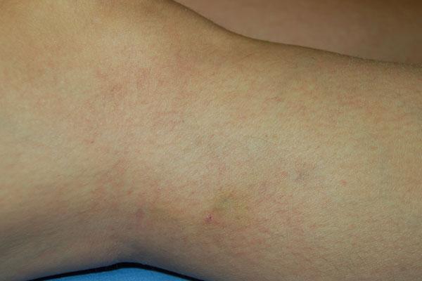 retikuláris visszér lézeres kezelés ginipralis visszeres