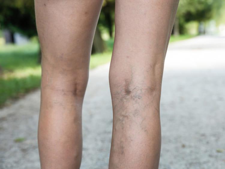 a lábak visszértágulata 20 év alatt a gyömbér visszeres alkalmazása