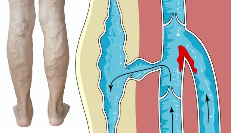 kenőcs egy gombából, az ujjak közötti lábon