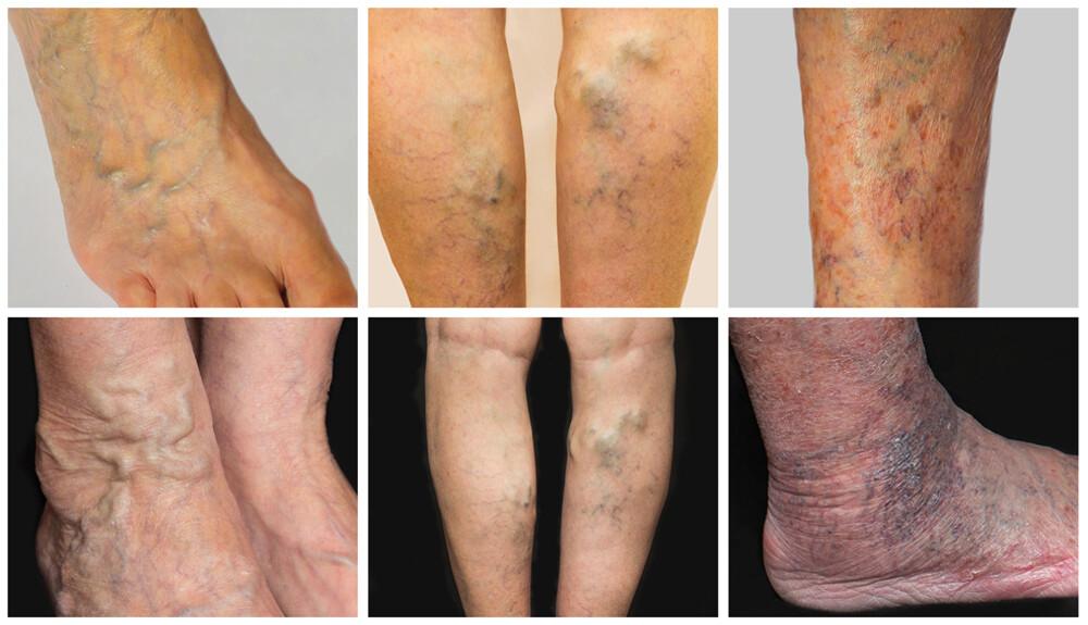 phlebodia 600 vélemény a lábak varikózisáról Félek a visszér műtétjétől