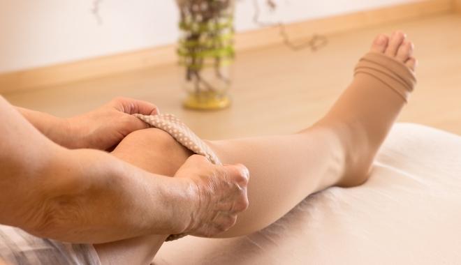 visszér, hogyan lehet azonosítani a lábakon kórtörténet visszér