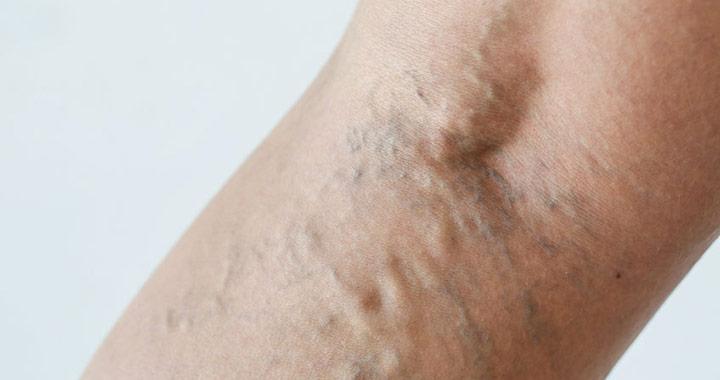 rugalmas pólyák terhességi visszerek gyógyszer visszér lábak