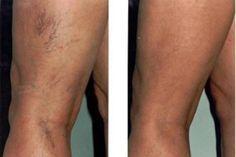 a varikózis eltávolítása a lábakon lézeres videóval