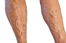 a visszértágulat visszaesése műtét után a varikózis miatt éjszaka fáj a láb