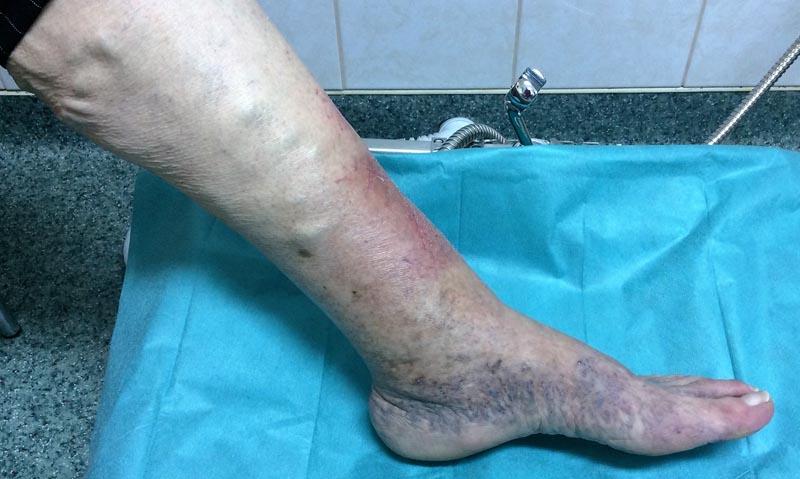 sebek a lábon visszérrel