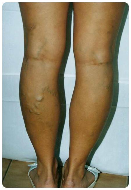 lábműtét. az alsó végtagok visszér