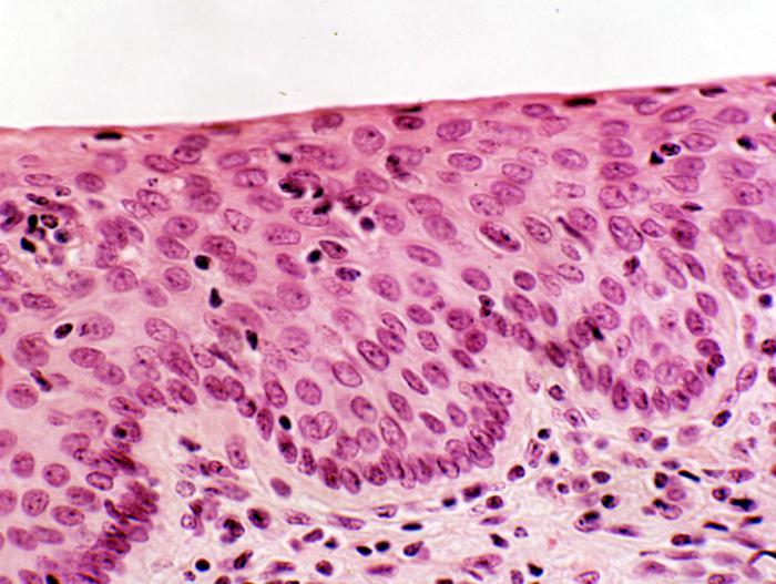 az alsó végtagok retikuláris varikózisa, mi ez