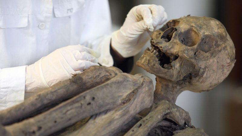 múmia visszér vélemények az alsó végtagok varikózisának kezelése lézeres áron