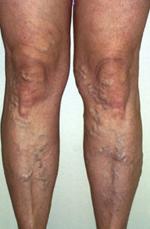 visszér műtét orvosok Fagynak-e a lábak visszérrel