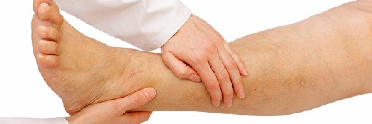 Tibeti torna a lábak varikózisára. A Lymphedema meghatározása
