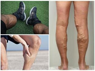 visszér és thrombophlebitis együtt népi gyógymódok a lábak visszér ellen