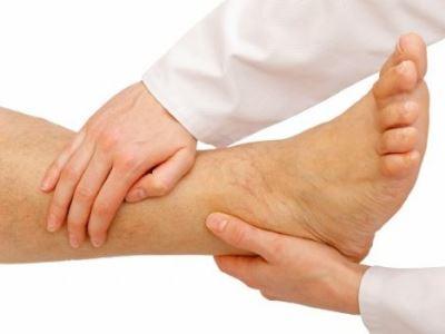 visszeres véraláfutások jelentek meg a lábán
