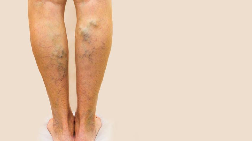 miért álmodik a varikózisról a lábakon