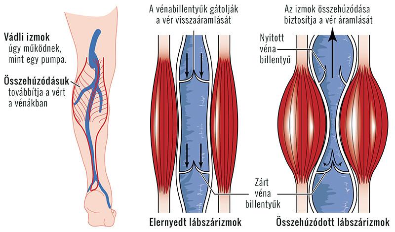 nehézség a lábban, visszeres visszér hatékony gyógymódok