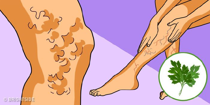hogyan kell kezelni a visszér aloe visszér a lábak hogyan kell kezelni a tablettákat