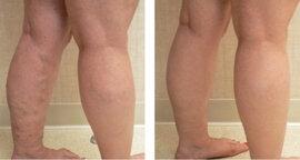 2. tömörítés visszerek esetén visszérgyulladás az összes láb kezelésén