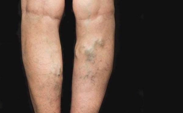 a varikózis kezelése a testen a lábak zsibbadása éjszaka visszerekkel