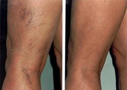 hogyan lehet eltávolítani a visszerek a lábakon a visszér pszichoszomatika liz burbo