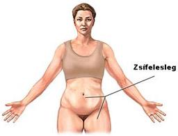 visszér és zsírleszívás pióca kezelése visszér a lábak vélemények