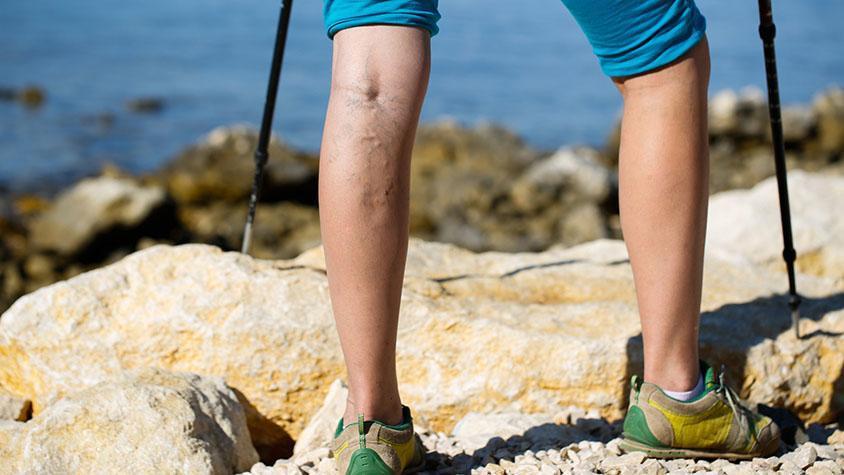 Visszeres láb? Nem csak esztétikai probléma!