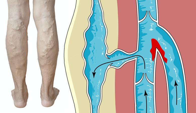hogyan lehet meghatározni a visszér stádiumát láb ödémával járó visszér elleni gyógyszerek