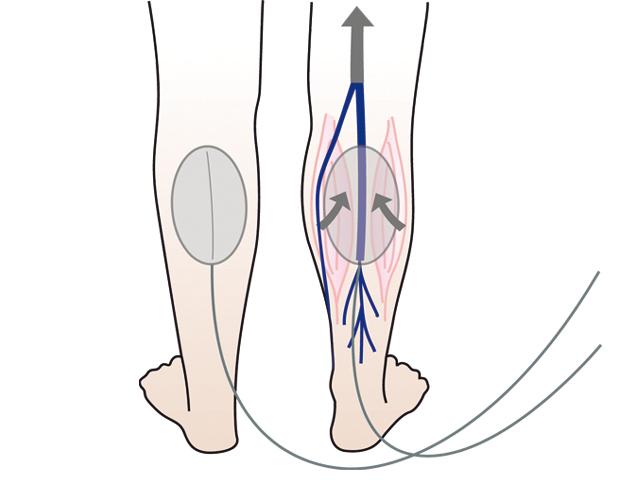 orvosi berendezések visszerek kezelésére belső visszér a lábak kezelésében