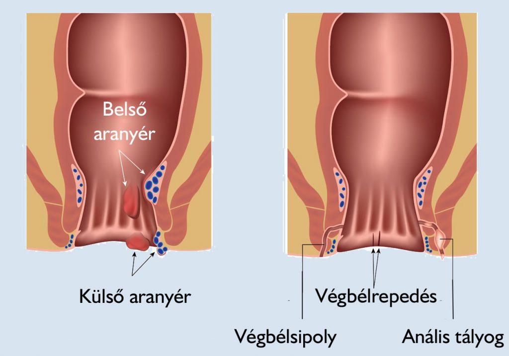 visszérgyulladás a végbélnyílás kezelésében visszér kezelés lézerrel Zelenogradban