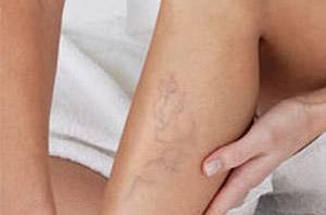 az alsó láb zsibbadása visszeres műtét után rugalmas kötszerek a visszerekből