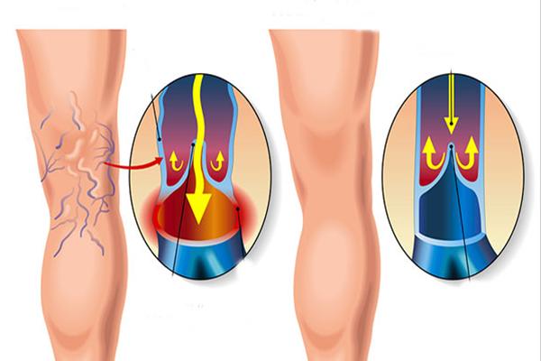a visszeres műtét előnyei és hátrányai