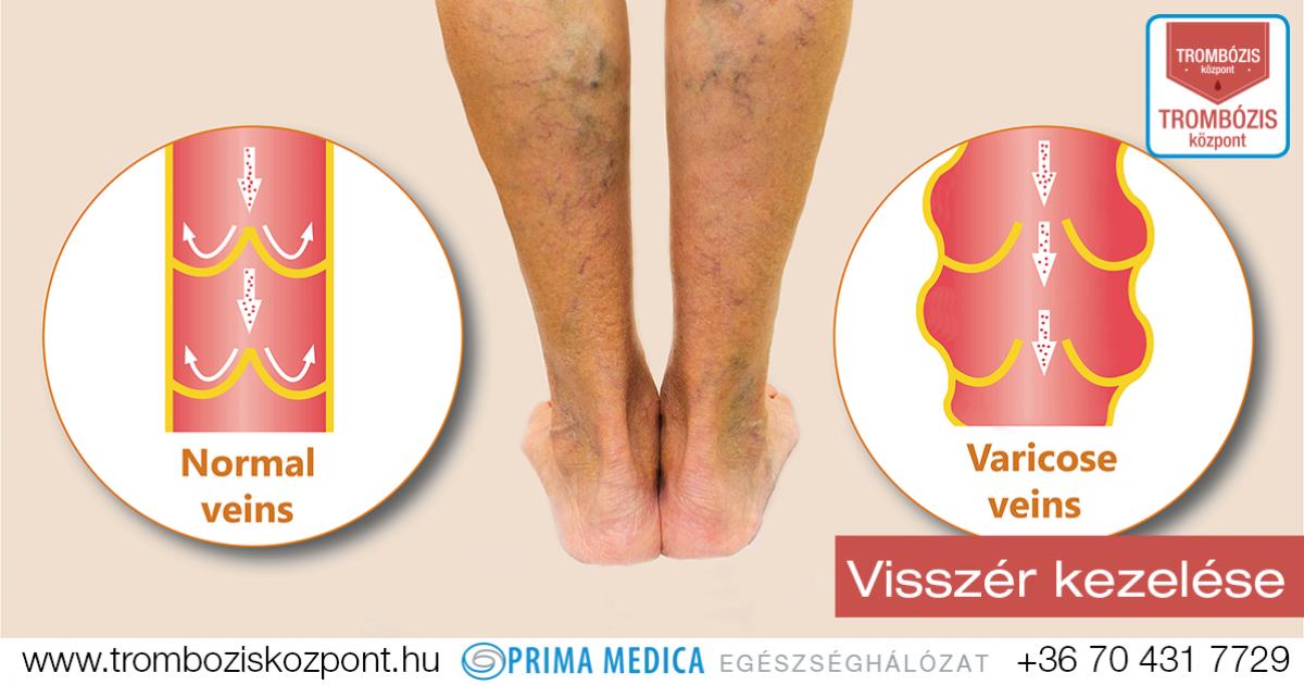 visszér a lábán bizsergés eldugult vénák visszér kezelése
