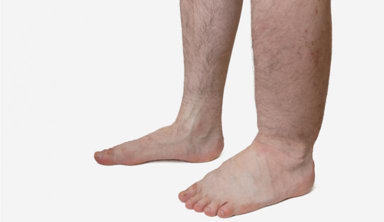 Égő lábak - Hogyan kell kezelni