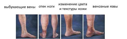 visszér phlebosclerosis kezelése a visszér összeesküvései