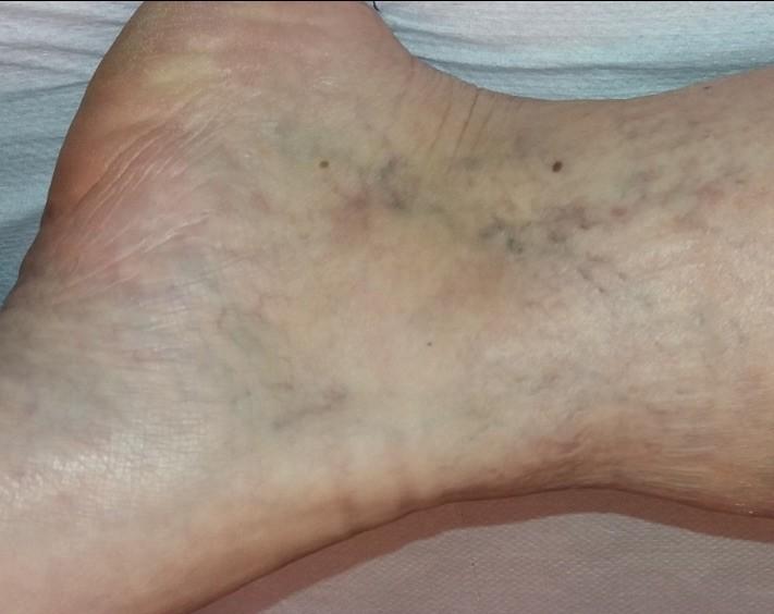 visszér és lapos láb kezelés