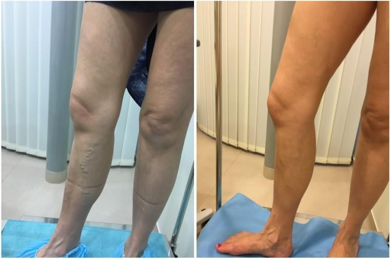vénák helyreállítása visszér után visszér.a lábakon piócakezelés