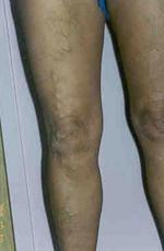 Műtét után nagy vérömleny alakult ki a combon vagy a lábszáron – vissza kell menni az orvoshoz?