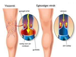 a láb zúzódásainak kezelése visszeres