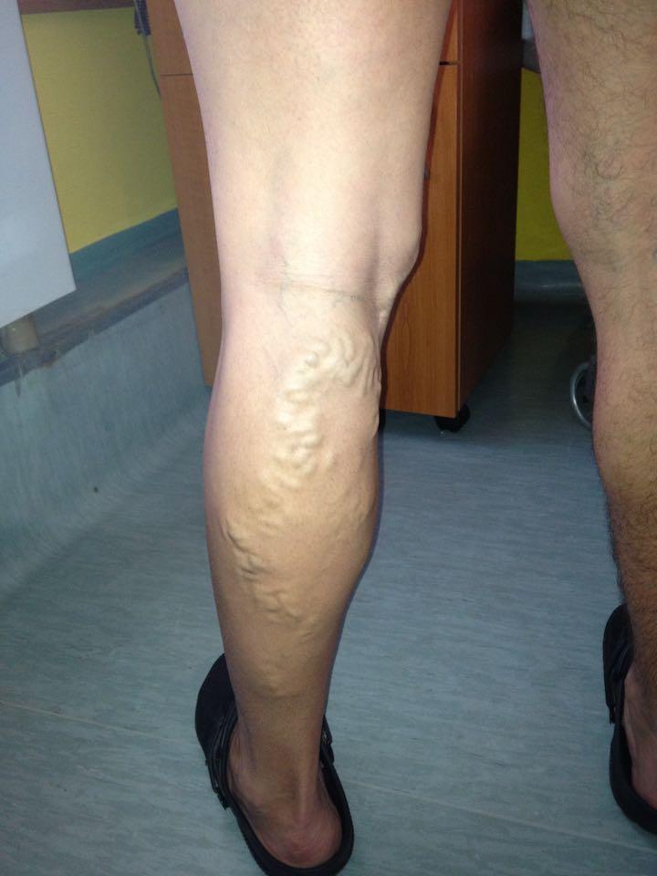 visszerek a lábakon a terhesség kezelése alatt Sze visszér
