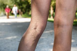 a visszerek modern kezelése a lábakon