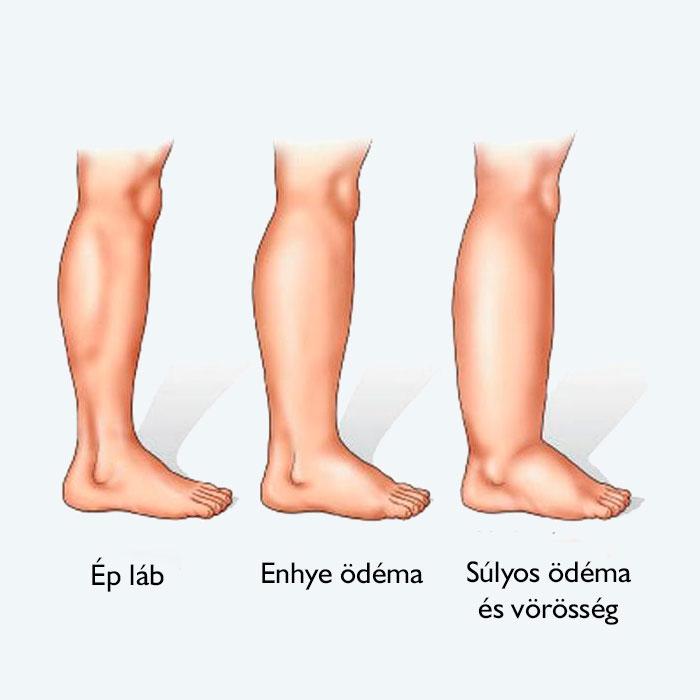 visszér a felső lábszáron