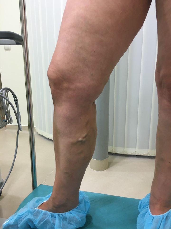 műtét után a visszér eltávolítása
