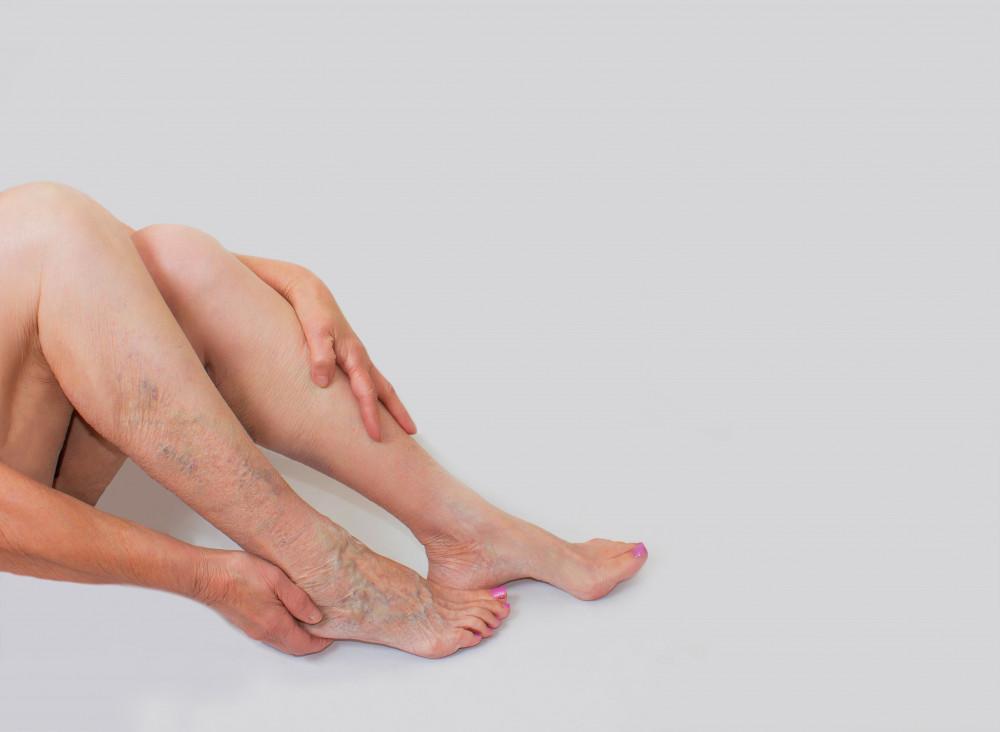 visszér éjszakai lábfájdalom nőknél a medence visszérje.
