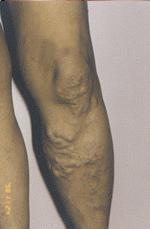 Here visszértágulat (varicocele) műtét