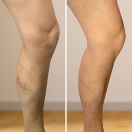 injekciós módszer visszér visszér harisnya harisnya vagy térd zokni