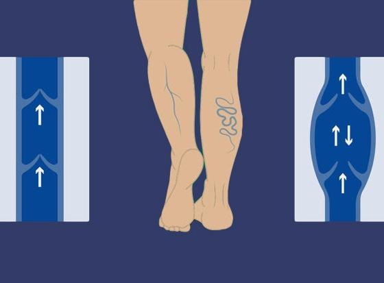 súlyos visszér a lábakon hogyan lehet megszabadulni a lábak visszérgyulladása és kezelésük
