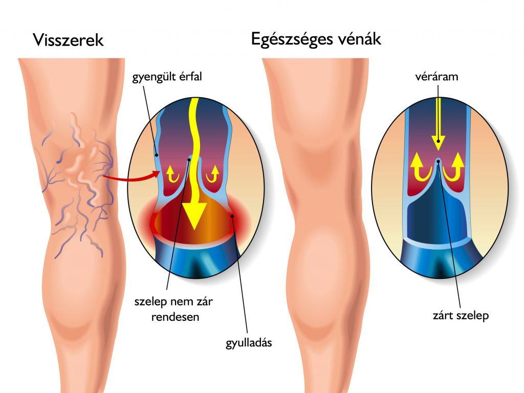 visszér és csontok belső visszér egy terhes nőnél