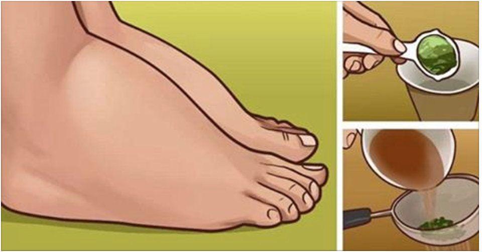 van-e diéta a visszér ellen a lábon lévő visszér húzza a lábát